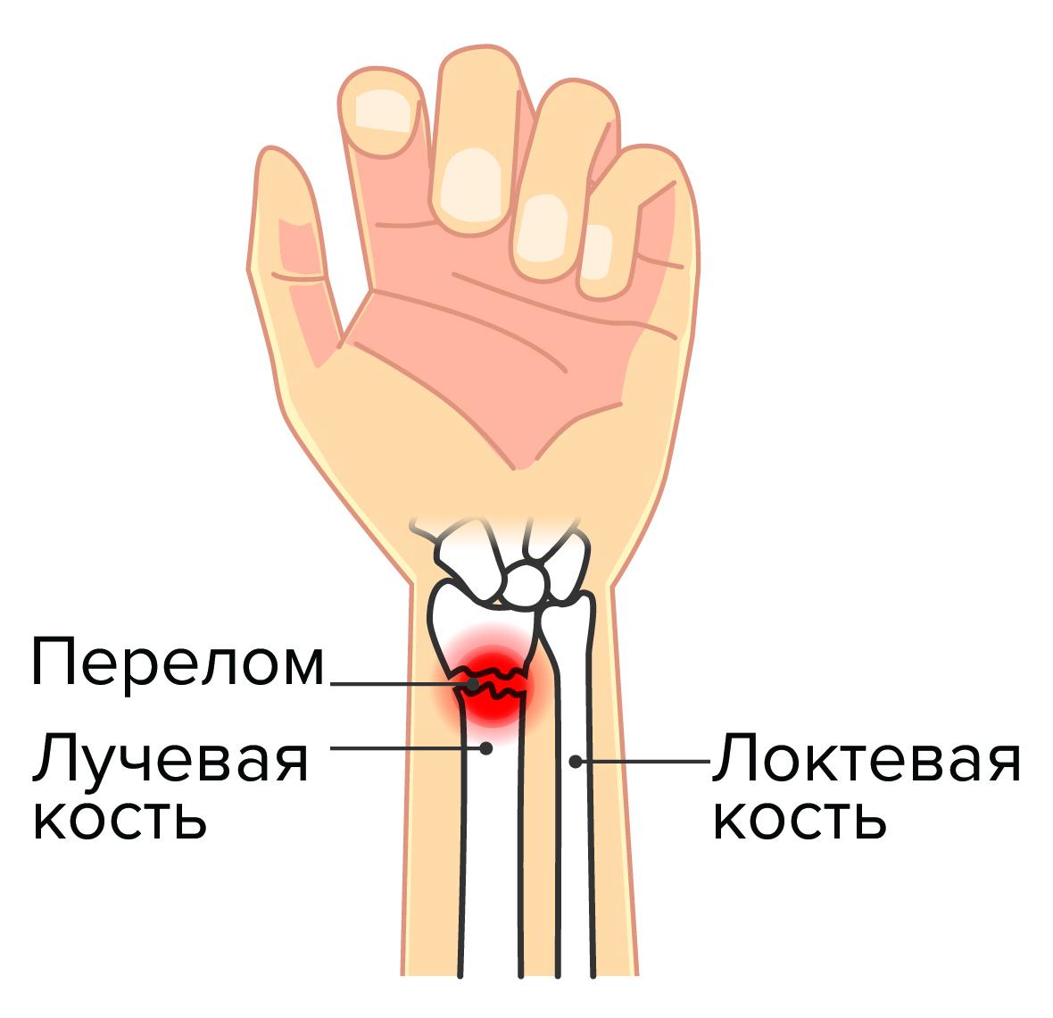 перелом нижнего конца лучевой кости фото работать