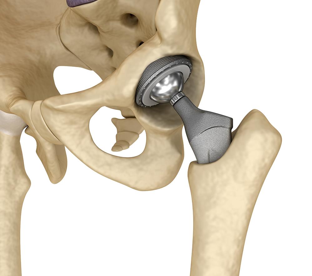 Ильинская больница :: Коксартроз. Эндопротезирование тазобедренного сустава